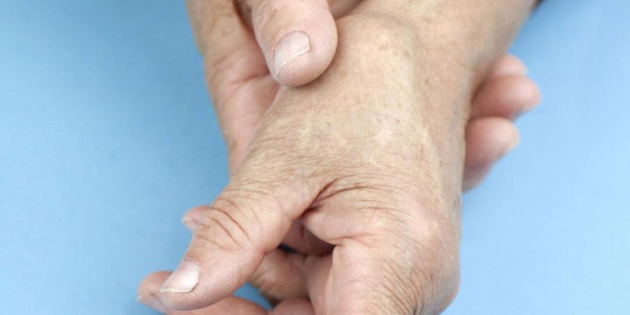 Hände einer Frau, die an rheumatoider Arthritis verformt ist