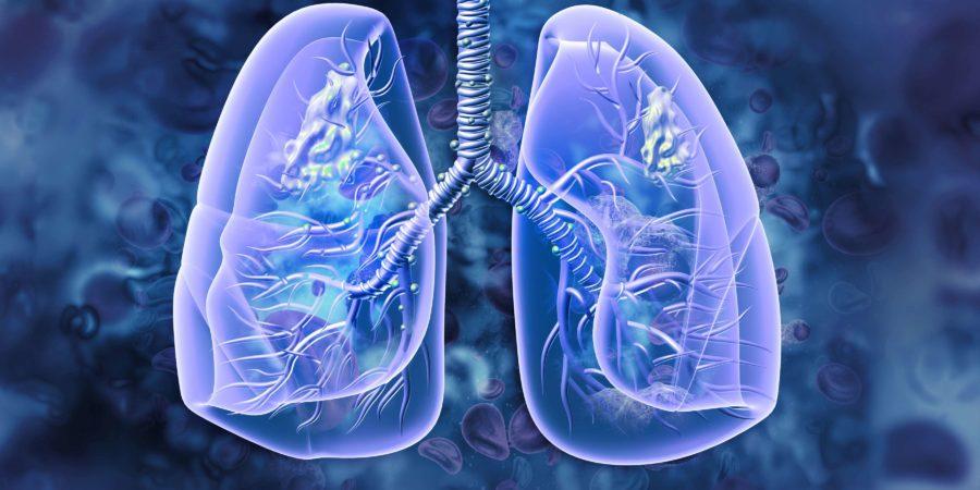 Lungenkrebs. Lungenerkrankung. 3D-Darstellung