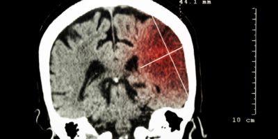 Hirninfarkt in der linken Hemisphäre (ischämischer Schlaganfall) (CT-Scan des Gehirns): Hintergrund in Medizin und Wissenschaft