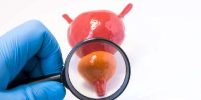 Untersuchung des Fotokonzepts der Prostata durch den Arzt Urologen. Arzt, der eine Lupe hält und durch sie untersucht und diagnostiziert die Prostata auf das Vorhandensein von Krankheiten – Krebs, Adenom