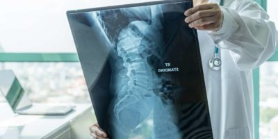 Chirurgischer Arzt, der radiologische Röntgenfilme der Wirbelsäule zur medizinischen Diagnose der Patientengesundheit bei Wirbelsäulenerkrankungen, Knochenkrebserkrankungen, spinaler Muskelatrophie, medizinischem Gesundheitskonzept betrachtet