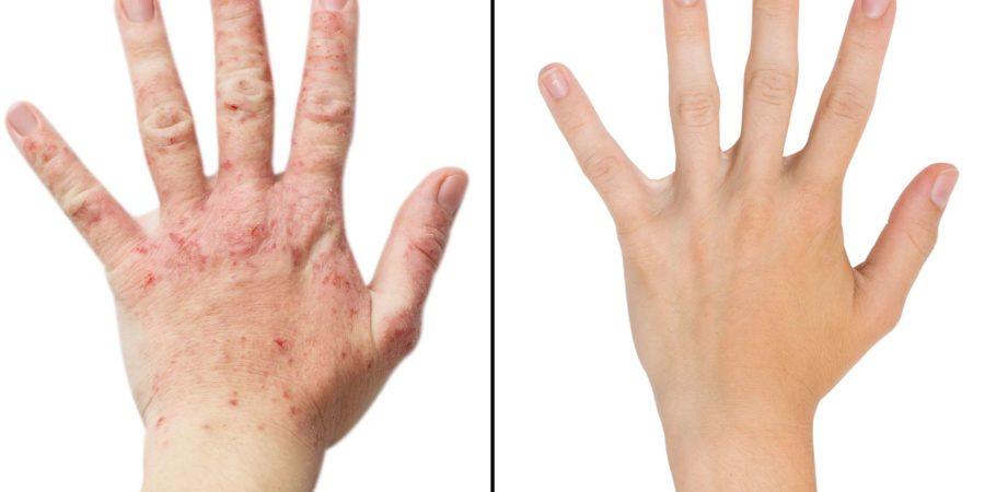 Echte Fotomädchenhand, der Patient mit Ekzemen vor und nach der Behandlung. Isolierter weißer Hintergrund