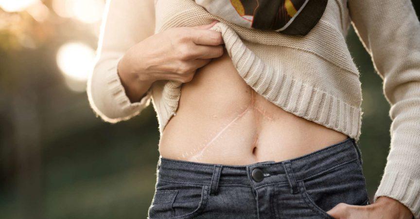 Nahaufnahme des Bauches eines Mädchens mit Lebertransplantationsnarben.