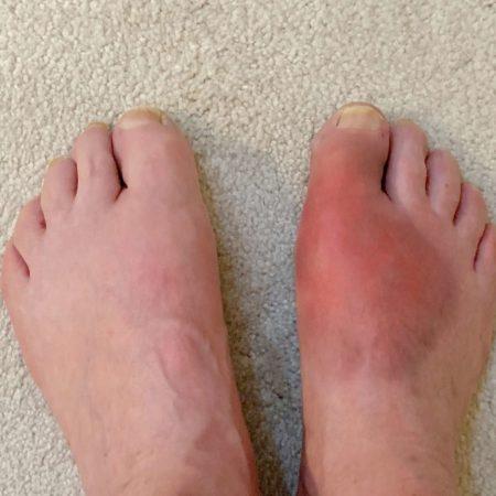 Geschwollener roter Fuß durch Gicht