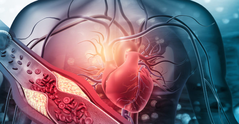 Menschliches Herz mit blockierten Arterien. 3D-Darstellung