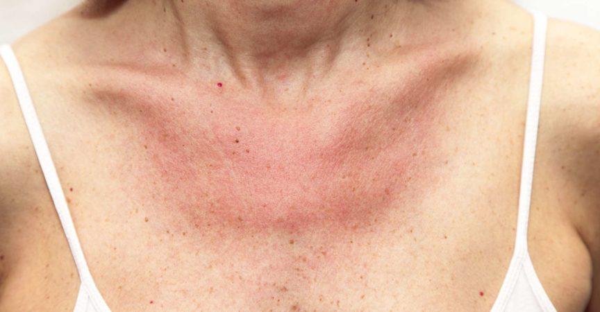 Frau mit Sonnenbrand und allergischer Reaktion nach ungeschütztem Sonnenbaden, akuter Zustand
