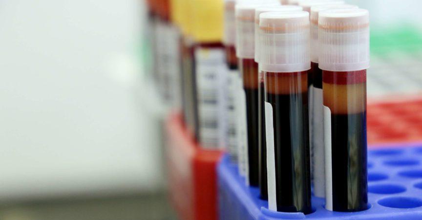 Konzept von Bluttest, Spende, Impfung, Coronavirus, Gesundheitswesen
