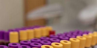 Reagenzglaszähler im Blutbankraum