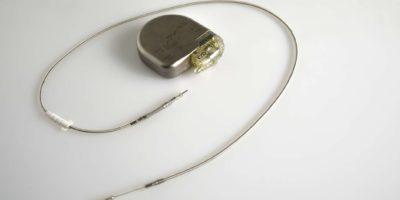 Ein implantierbarer Kardioverter-Defibrillator oder ein ICD-Schrittmacher mit Elektroden. Dieser wird in der Brust platziert, um einen plötzlichen Tod zu verhindern, wenn Patienten eine ventrikuläre Tachykardie oder Kammerflimmern erlitten haben