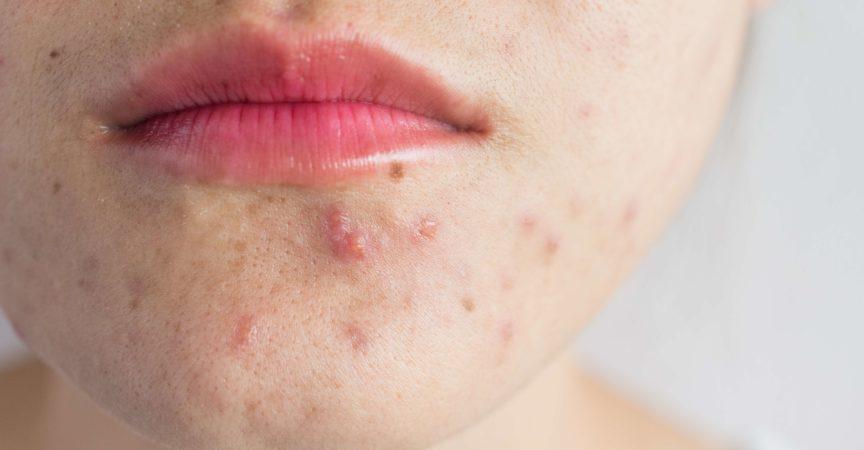 Konzeptionelle Probleme auf der Haut der Frau.