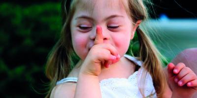 Porträt eines schönen kleinen Mädchens mit Down-Syndromе