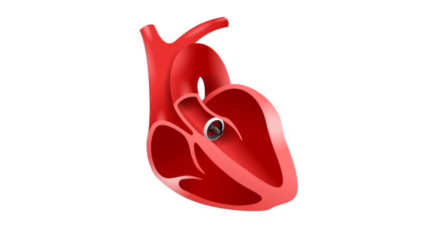Künstliches Herz