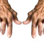 Alte Frauenhände deformiert von rheumatoider Arthritis isoliert auf weißem Hintergrund