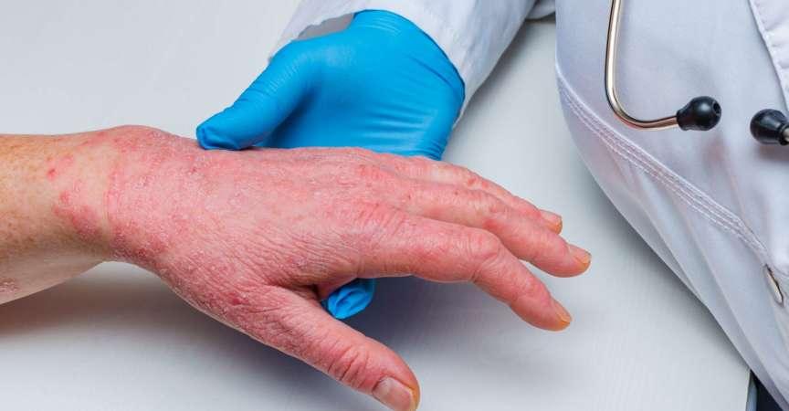 Arzt in Handschuhen untersucht die Haut der Hand eines kranken Patienten. Chronische Hautkrankheiten - Psoriasis, Ekzeme, Dermatitis.