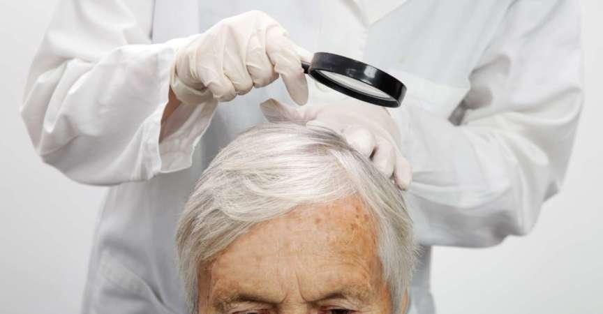 Arzt untersucht die Kopfhaut einer älteren Frau, Kopfhautekzem, Dermatitis, Psoriasis, Haarausfall, Schuppen oder trockene Kopfhaut