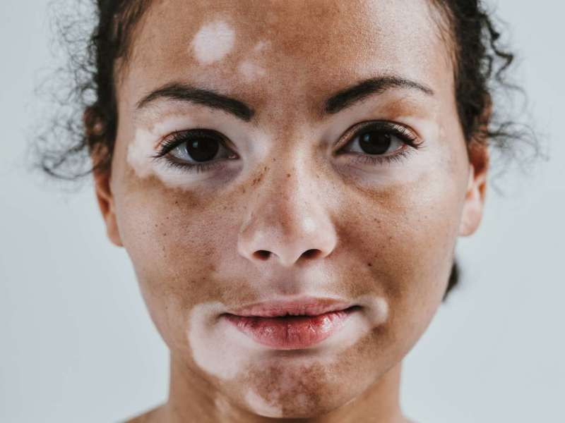 Schöne Frau mit Vitiligohaut, die im Studio aufwirft. Konzept über Körperpositivität und Selbstakzeptanz