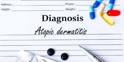 Neurodermitis auf der Diagnoseliste
