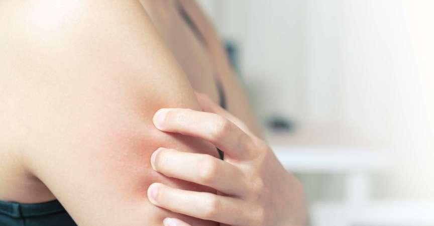 Frauen kratzen den Juckreiz am Arm-, Gesundheits- und Medizinkonzept.