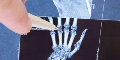 Röntgen eines Handskelett