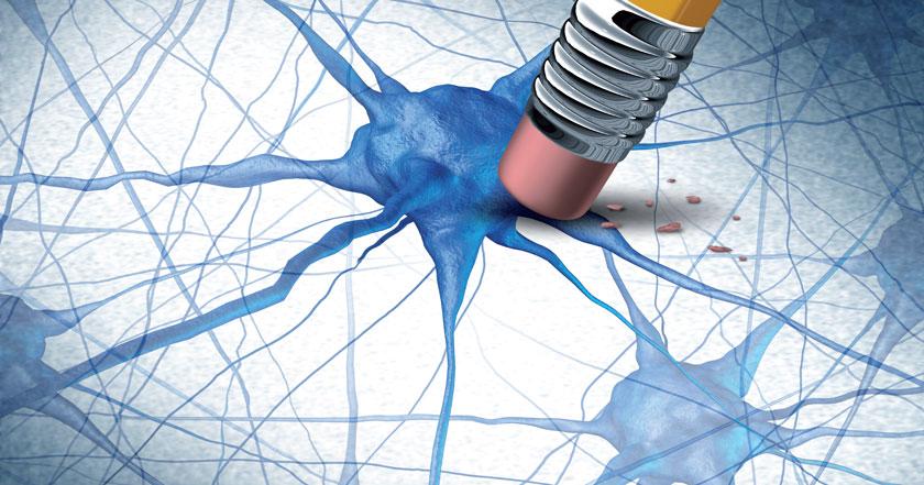 Jede neue Alzheimer-Therapie wird letztlich daran gemessen, ob sie den kognitiven Abbau verhindern kann.