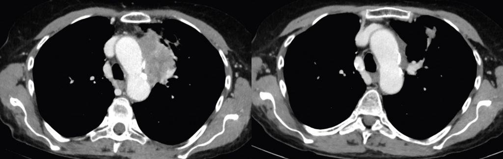 Vor (Bild li.) und nach (Bild re.) Therapie mit Pembrolizumab und Carboplatin-Pemetrexed bei einem PD-L1-negativen Patienten