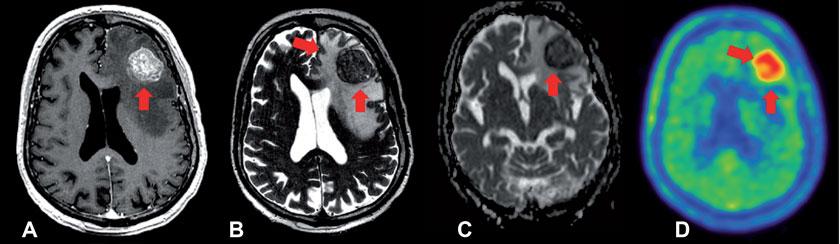 A: In der T1-gewichteten MRT-Sequenz kommt eine rundliche kontrastmittelaufnehmende Läsion links frontal zur Darstellung. Bildgebung eines 81-jährigen Patienten, der nach einem ersten epileptischen Anfall an der Notaufnahme vorstellig wurde. B: In der T2-gewichteten Aufnahme wird vor allem das peritumorale Ödem besser abgebildet. C: Eine diffusionsgewichtete MRT-Sequenz präsentiert einen zellreichen Tumor (dunkel) mit zellarmen Anteilen (hell, Ödem). D: Die 18F-FET-PET zeigt einen verstärkten Tumormetabolismus in der kontrastmittelaufnehmenden Läsion im MRT. Der Patient unterzog sich in weiterer Folge einer operativen Entfernung der Raumforderung, und es fand sich histologisch ein Plattenepithelkarzinom als zerebrale Metastase eines bis dahin noch nicht diagnostizierten Karzinoms der Speiseröhre.