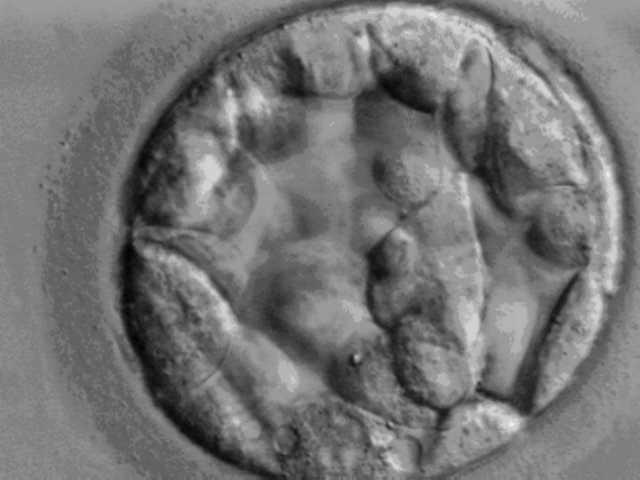 Bei der nicht-invasiven Polkörperdiagnostik kann lediglich das Erbmaterial der Mutter untersucht werden. Genetisches Material einer Blastozyste (das Bild zeigte eine Blastozyste am Tag 5) beinhaltet die Erbinformationen von Mutter und Vater.