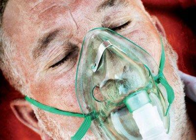 Die nicht-invasive mechanische Beatmung ist die einzige Maßnahme, für die die ERS/ATS-Leitlinie eine starke Empfehlung ausspricht.