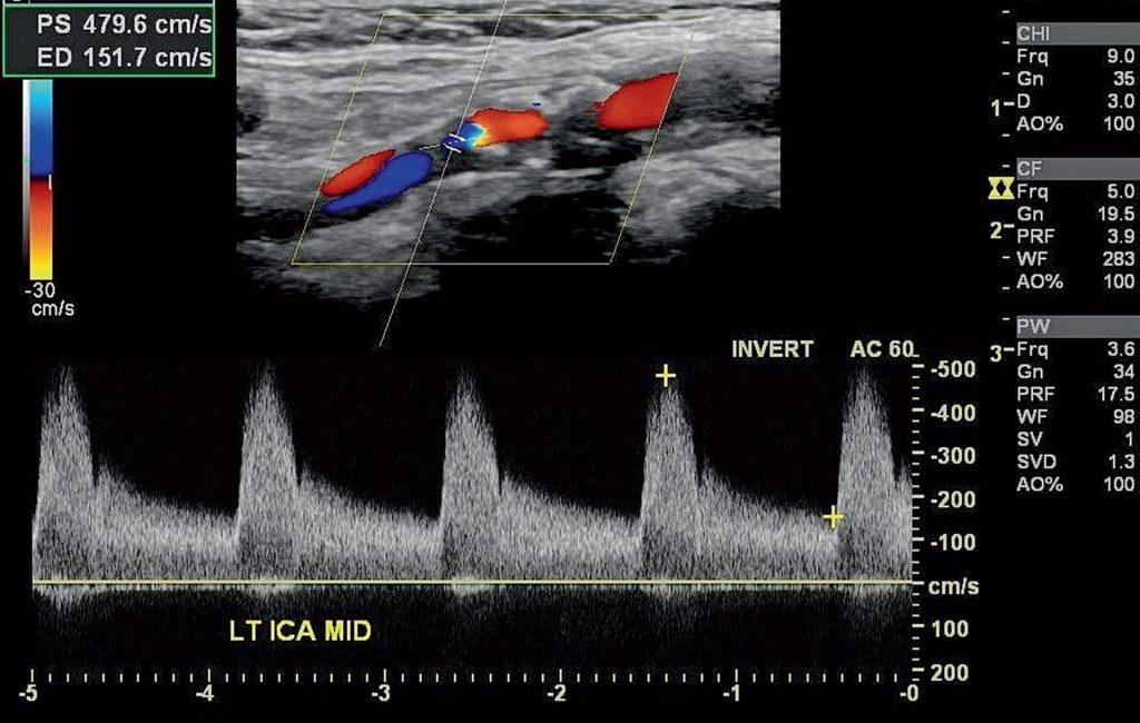 So präsentiert sich eine hochgradige Stenose der Arteria carotis interna im farbcodierten Doppler-Ultraschall.