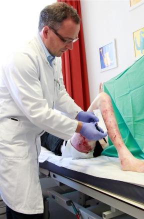 Prof. Dr. Johann Bauer beim Vermessen  einer behandelten Körperstelle.