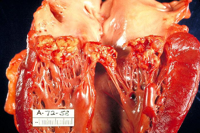 """Haemophilus parainfluenzae Endocarditis PHIL 851 lores"" von http://phil.cdc.gov/PHIL_Images/02122002/00007/PHIL_851_lores.jpg. Lizenziert unter Gemeinfrei über Wikimedia Commons - http://commons.wikimedia.org/wiki/File:Haemophilus_parainfluenzae_Endocarditis_PHIL_851_lores.jpg#mediaviewer/File:Haemophilus_parainfluenzae_Endocarditis_PHIL_851_lores.jpg"
