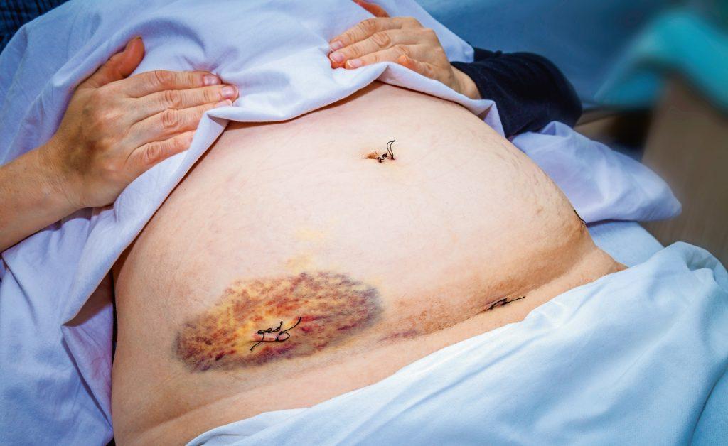 Bei kutanen und subkutanen Endometrioseläsionen reicht laut Imboden und Mueller meist eine operative Entfernung als Therapie.