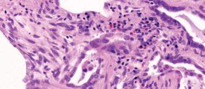 Histologisches Muster einer Usual Interstitial Pneumonia (UIP): sichtbar sind die Fibroseareale in den Interalveolarsepten. (Färbung mit Hämatoxylin-Eosin)