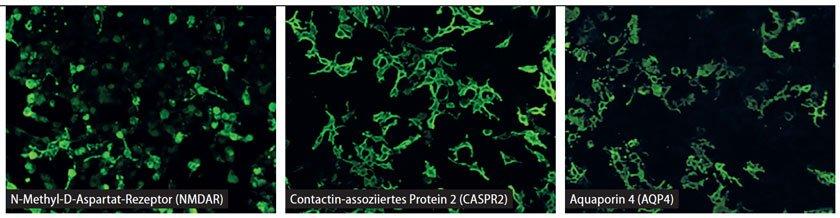 Positive Immunfärbungen für neuronale Zelloberflächen-Antigene