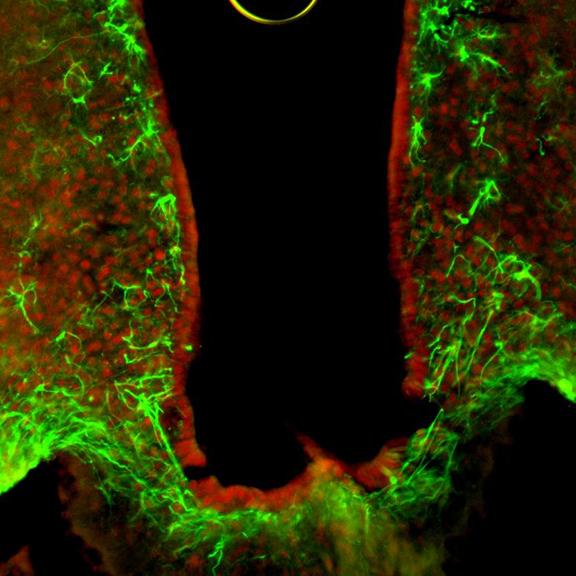 HDAC5 (rot) spielt eine wichtige Rolle für die Kontrolle der Nahrungsaufnahme, die durch Nervenzellen (grün) vermittelt wird.