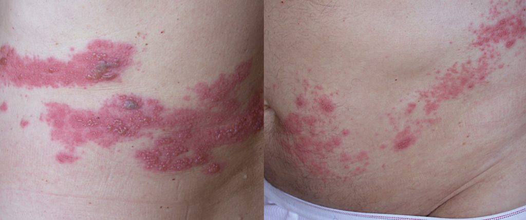 Akuter Herpes zoster – unilaterale gruppierte Bläschen auf erythematösem Grund innerhalb eines Dermatoms im Bereich von Thorax und Abdomen