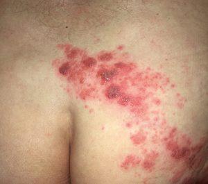 Typische Herpes- Zoster-Hautveränderungen auf dem Gesäß; gruppierte Bläschen auf geröteter Haut, beschränkt auf ein Dermatom