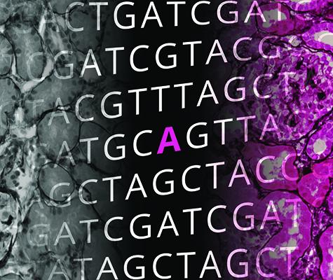 Ein neuer Test unterstützt Ärzte bei der Suche nach genetischen Mutationen, die zu Nierenerkrankungen führen können.