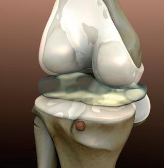 Schmerzen: Omega-3-FS können den NSAR-Bedarf reduzieren.