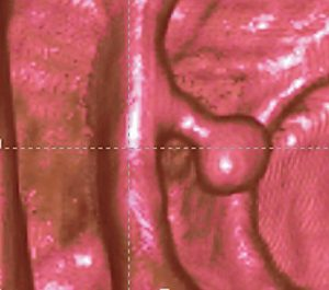 Erstaunlich detailgenau stülpt sich der Kolonpolyp auch in der virtuellen Koloskopie – hier per MRT – in das Darmlumen.