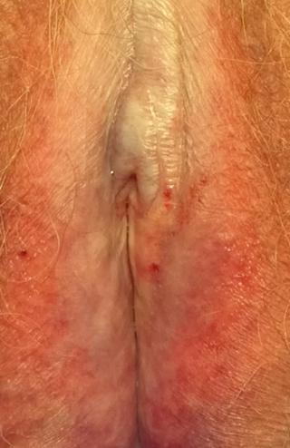 Lichen sclerosus genitalis (82-jährige Patientin)