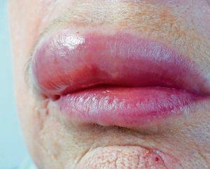 Die Schwellung beginnt meist im Bereich der Lippen.