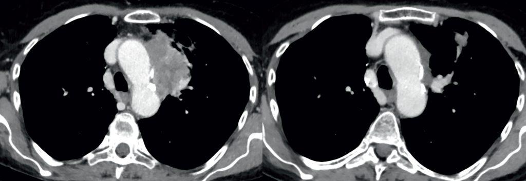 Vor (links) und nach Therapie mit Pembrolizumab und Carboplatin-Pemetrexed bei einem PD-L1-negativen Patienten.