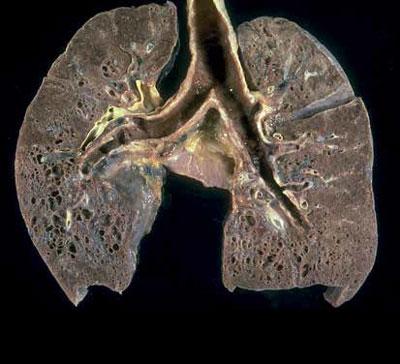 Pathologisches Präparat einer Lungensarkoidose im Endstadium.