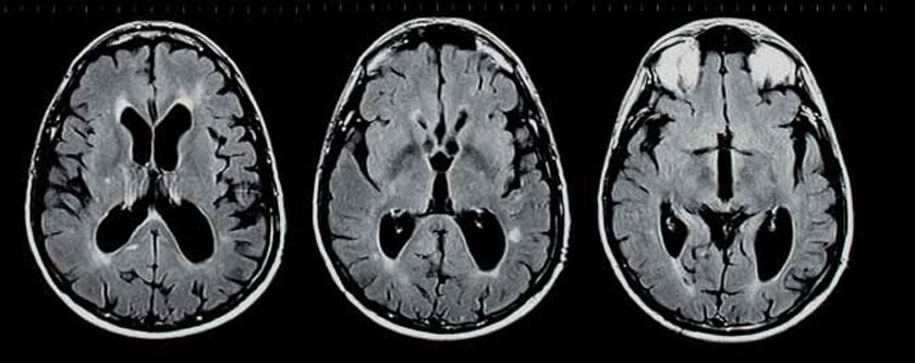 Multiple Sklerose im MR: Die Erkrankung ist nicht nur auf die sichtbaren Läsionen beschränkt