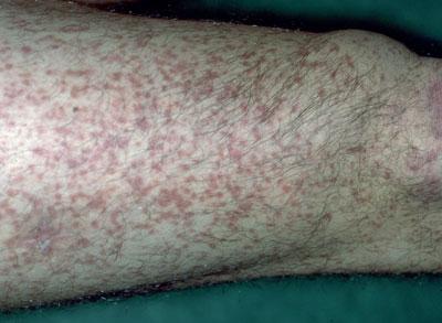 Typische makulopapulöse Hautveränderungen bei Erwachsenem mit kutaner Mastozytose (Urticaria pigmentosa)