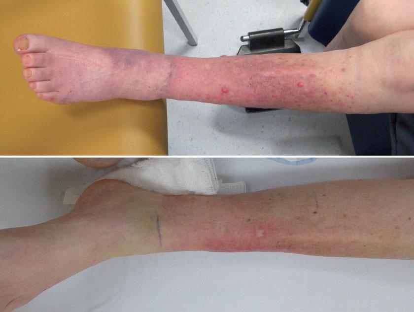 78-jährige Patientin mit Merkelzellkarzinom, u.a. am linken Unterschenkel. Links vor der Therapie, rechts nach 50 Gy Bestrahlung und dem ersten Zyklus Anti-PD1. Die Fotos wurden leider mit unterschiedlichen Digitalkameras aufgenommen, dennoch ist der Rückgang der flächigen und auch der punktuellen Hautläsionen deutlich sichtbar.