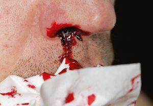 Bei rasch zunehmender Blutungsneigung gilt es, an APL zu denken. Ein früher Therapiestart senkt die Frühmortalität durch Blutungen.