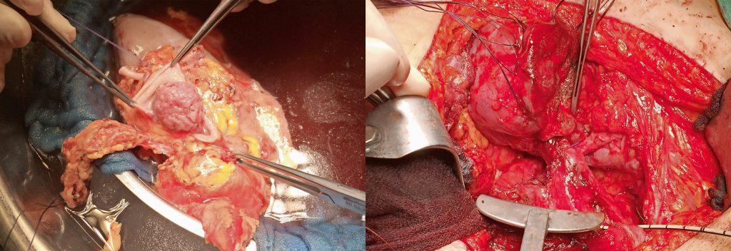 links: Die explantierte Niere wird auf Eis gelagert, in der Bildmitte ist der Tumor zu erkennen. rechts: Niere nach Entfernung des Tumors mit Darstellung der Verbindung zwischen Blase und Niere.
