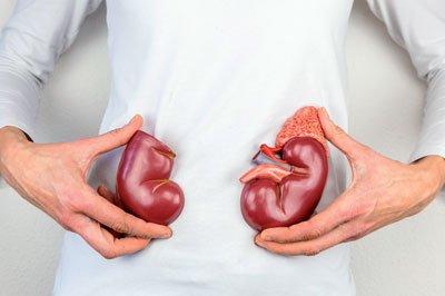Bei chronischer Niereninsuffizienz können in erster Linie Natrium und Phosphor problematisch werden.